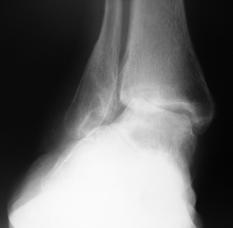 addressing stage ii posterior tibial tendon dysfunction